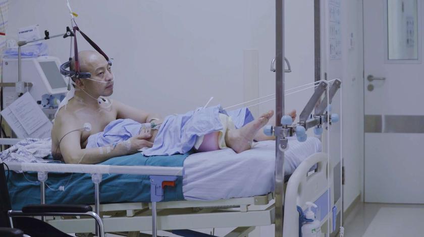 """历经四次手术后,曾让全网关注的""""折叠人""""现在怎么样了?"""